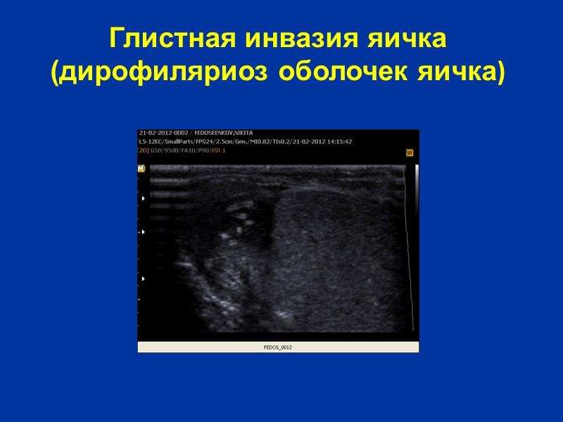 Травма мошонки и ее органов Травма мошонки встречается относительно часто. Механизм травматического повреждения яичек